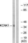 GTX87344 - KCNK1