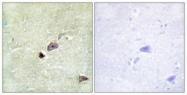 GTX87419 - TRIM59 / TSBF1 / RNF104