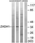 GTX87478 - ZADH1