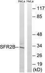GTX87504 - SFRS2B / SRP46
