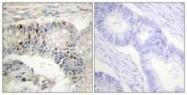 GTX87506 - Histone H1.5