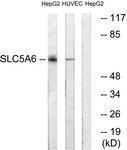 GTX87516 - SLC5A6 / SMVT