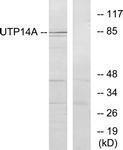 GTX87543 - UTP14A
