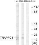 GTX87644 - TRAPPC3