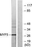 GTX87746 - Myogenic factor 5 (MYF5)