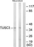 GTX87753 - TUSC3 / N33