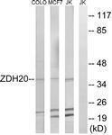GTX87798 - ZDHHC20