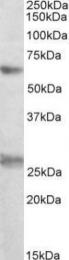 GTX88019 - EIF2B4 / EIF2BD