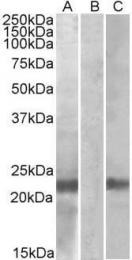 GTX88034 - Cystatin 8