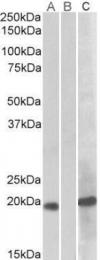 GTX88041 - HOXA1 / HOX1F