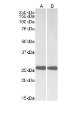 GTX88056 - UCHL1 / PGP9.5