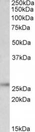 GTX88060 - UCHL1 / PGP9.5