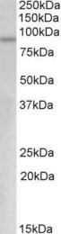 GTX88080 - MYB