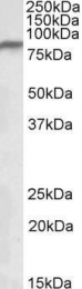 GTX88087 - NDUFS1