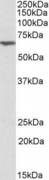 GTX88121 - Anthrax toxin receptor 2 / ANTXR2