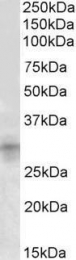 GTX88132 - IGFBP7