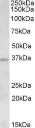 GTX88135 - Aurora kinase C