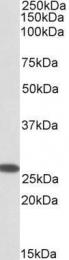 GTX88140 - CHCHD3