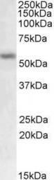 GTX88142 - MMP-12