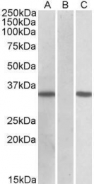 GTX88144 - CRISP2
