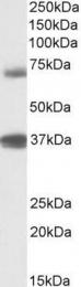 GTX88145 - TRIM29 /  ATDC