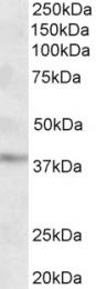 GTX88163 - GHITM / DERP2