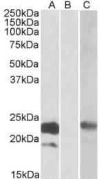 GTX88202 - Cystatin 8