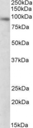 GTX88228 - DTX3 / RNF154