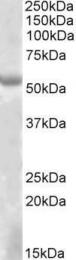 GTX88229 - EYA1