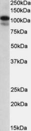 GTX88290 - SATB1
