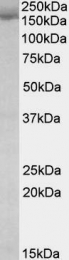 GTX88304 - STAG2 / Stromal antigen 2