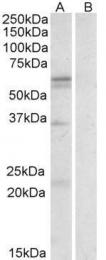 GTX88312 - CD98LC / SLCA5