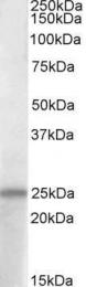 GTX88313 - ADCYAP1 / PACAP