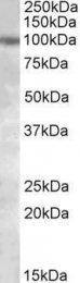 GTX88317 - PKD2