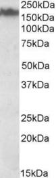 GTX88324 - Neurofilament  M (160 kD)