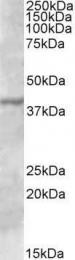 GTX88340 - TFB1M