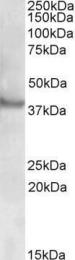 GTX88362 - RAPSN / RNF205