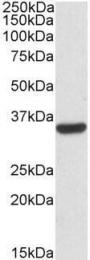 GTX88377 - Calponin-2