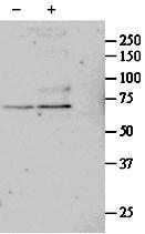 GTX88384 - Serum response factor (SRF)