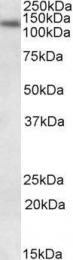 GTX88393 - DNA ligase 1