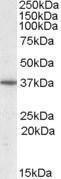 GTX88415 - PPP2R4 / PTPA