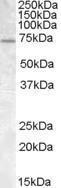 GTX88417 - FMR1 / FMRP