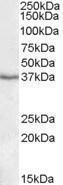 GTX88446 - PON1