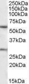 GTX88458 - KCNQ1