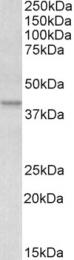 GTX88518 - Apolipoprotein L1 (Apo L1)