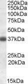 GTX88520 - Apolipoprotein J / Apo J