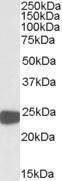 GTX88526 - Peroxiredoxin-1 / PRDX1