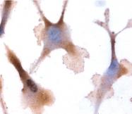 GTX88534 - Oxytocin receptor / OXTR