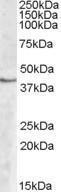 GTX88593 - Sphingosine kinase 1 (SPHK1)