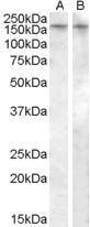 GTX88634 - Vasopressin V1b receptor (V1bR)
